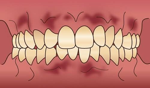 歯の色でお悩みの方