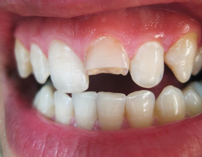 前歯が欠けた、破折してしまったら